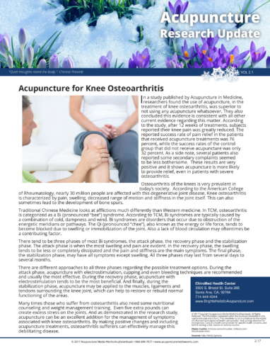 Osteoarthritis of knee research1_201702-1